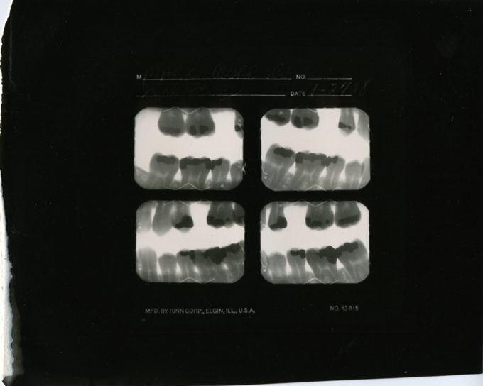 Mark Morrisroe, Untitled (Self Portrait / Teeth X-Ray)