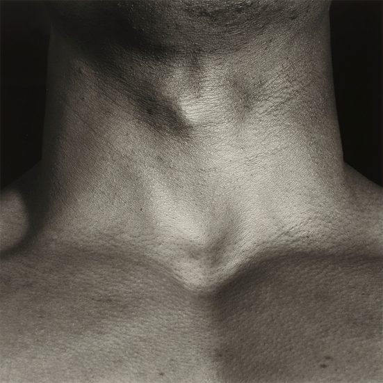 Robert Mapplethorpe, Neck/Livingston