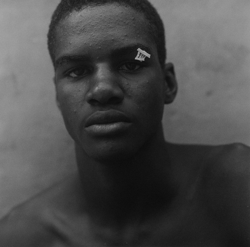 Untitled (Boxer with Butterfly Bandage)